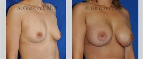 What to expect after breast reconstruction surgery jpg 640x265