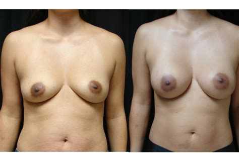 Breast augmentation in virginia beach jpg 600x400