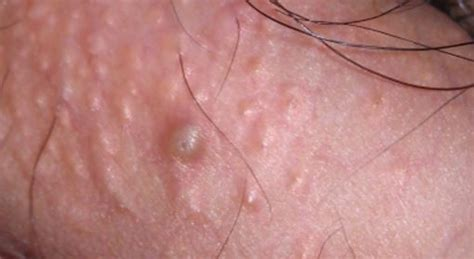 Fordyce spots on penis, shaft, scrotum, itchy, inflamed jpg 510x279