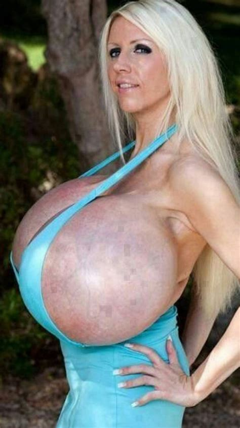 When to remove and replace old breast implants jpg 790x1405