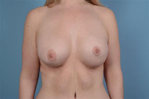 Breast augmentation in virginia beach jpg 6000x4000